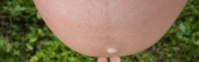 68103686 – wide angle pregnant belly viewed from the top.